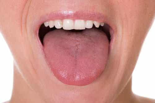 De første 5 symptomer på tungekræft