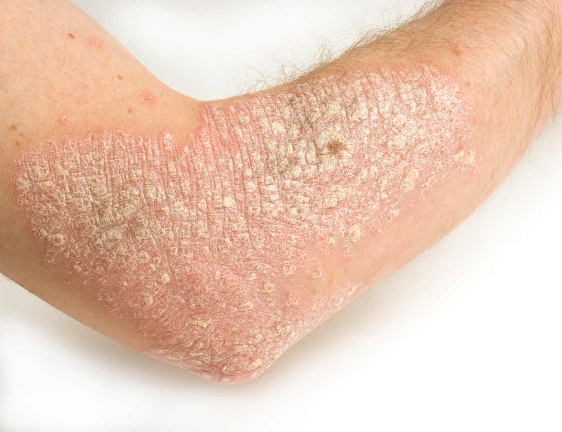 Person med psoriasis - lindre symptomerne paa psoriasis