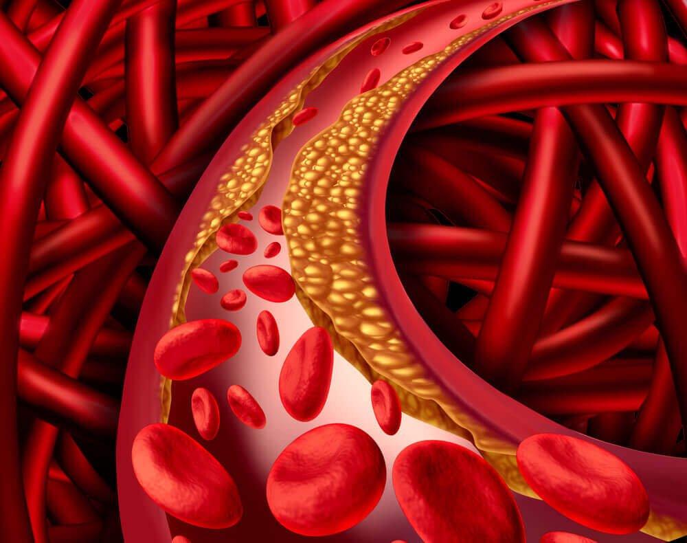 Forhøjet kolesterolindhold i blodet