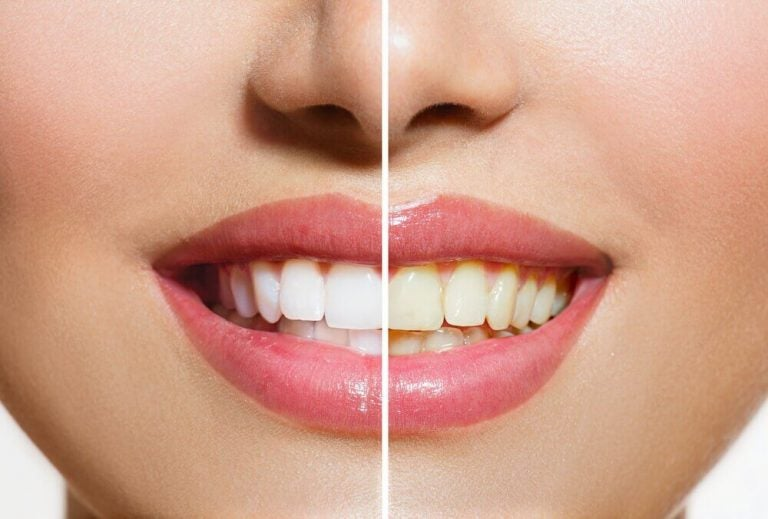 Naturprodukter der giver dig hvide tænder