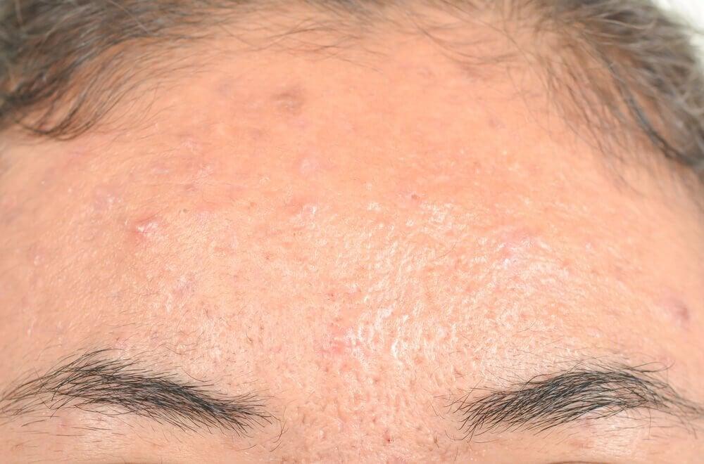 eksem i ansigtet tør hud