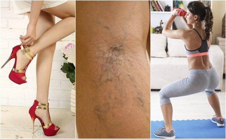 10 tips til at undgå åreknuder