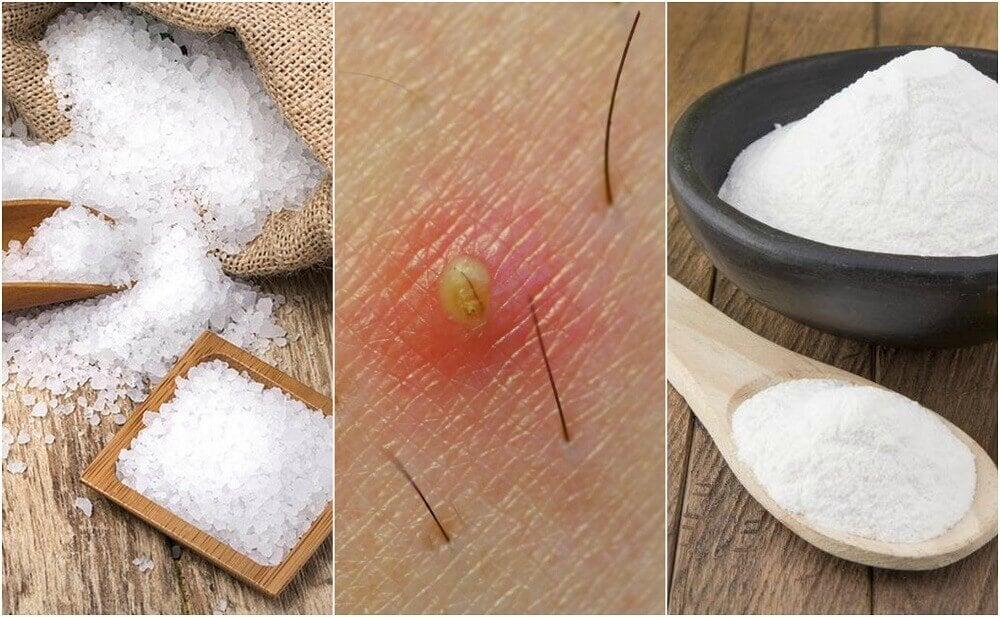 5 naturlige løsninger mod indgroet hår
