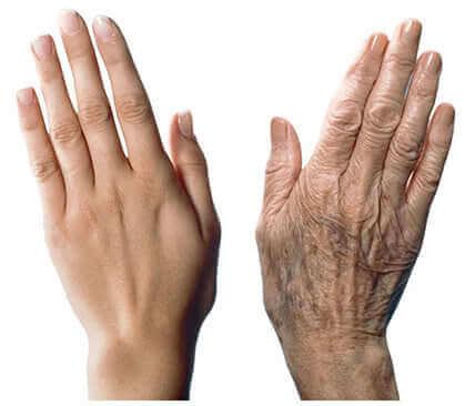 7 anbefalinger til at pleje aldrende hænder