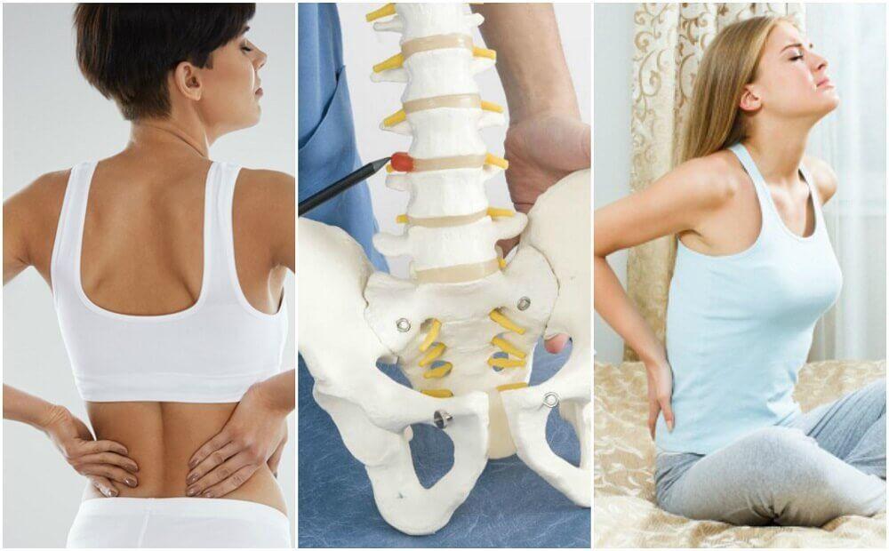 8 medicinske årsager til rygsmerter