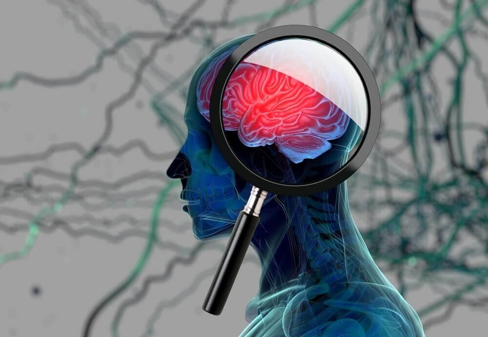 Menneskets hjerne