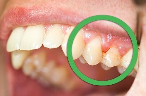 Person med tandkoedsbetaendelse