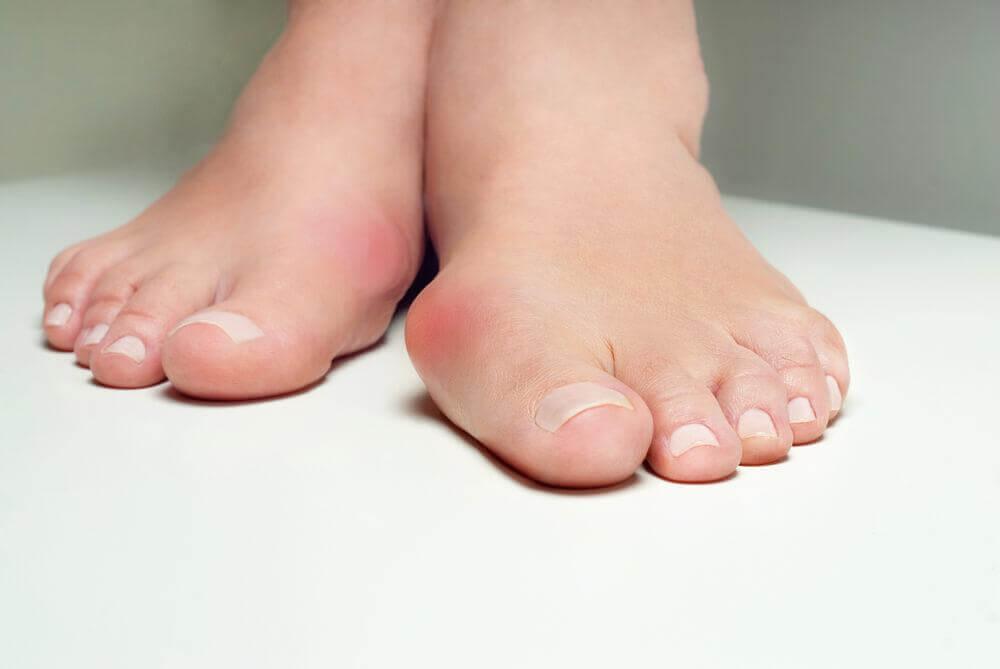 5 midler der hjælper dig med at bekæmpe en skæv storetå