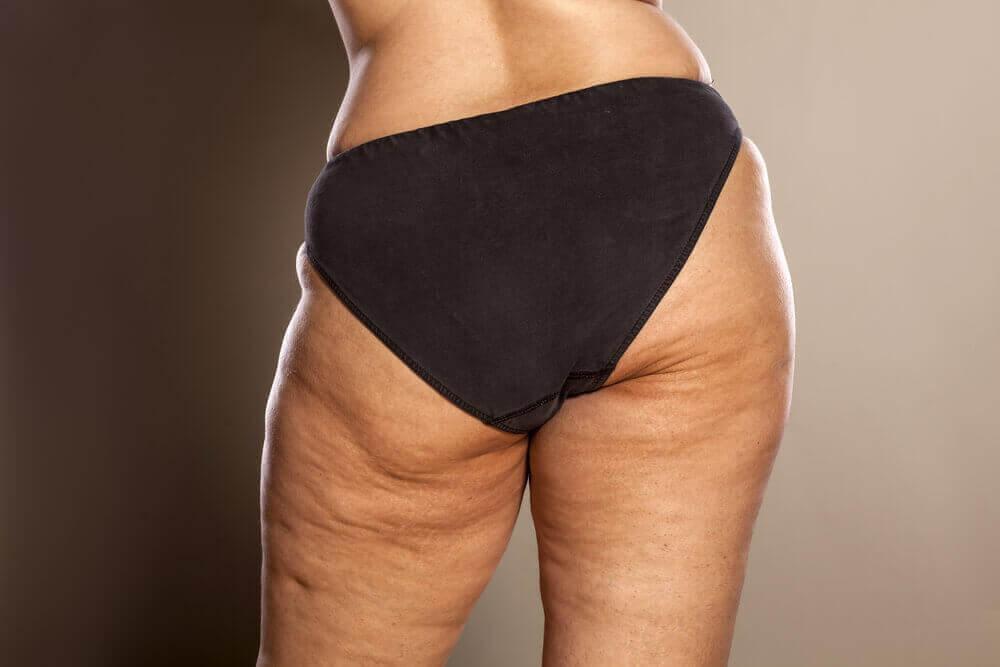 Kvinde med cellulitis