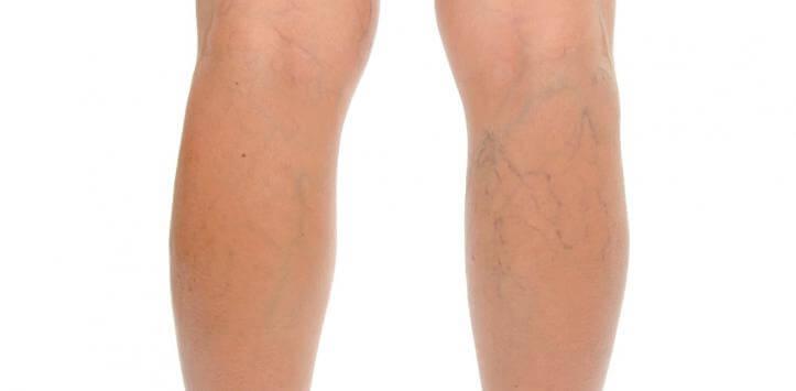 Åreknuder på benene