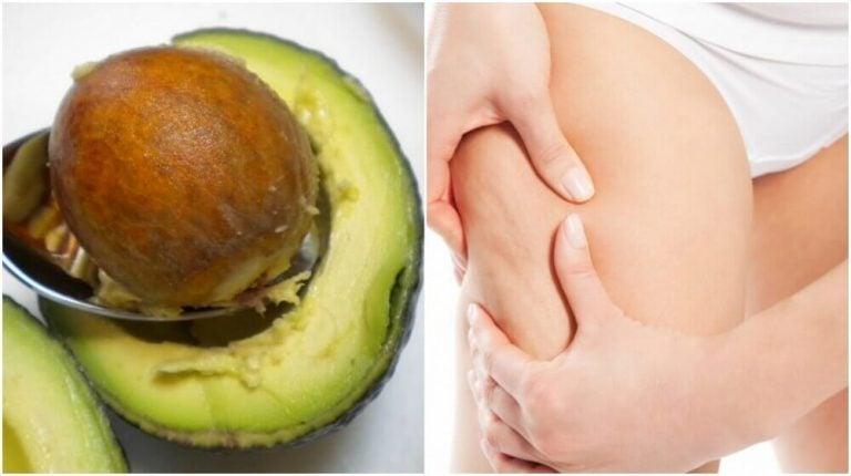 Sådan bruges avocadokerner til behandling af cellulitis
