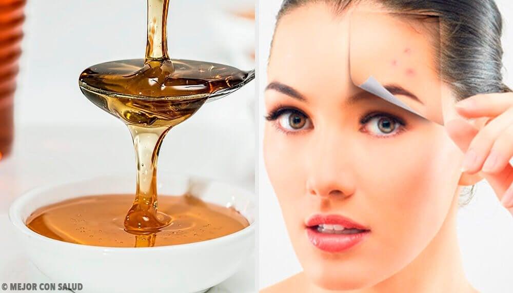 4 naturlige opskrifter til at beskytte din hud