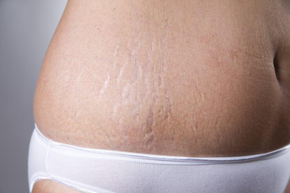 Kvinde med straekmaerker - bruge vitamin E kapsler
