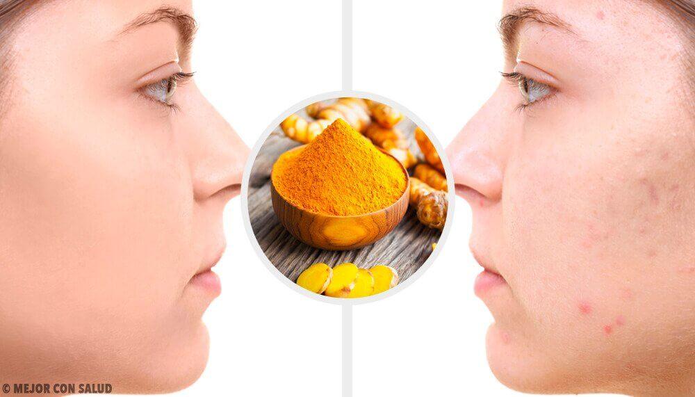 5 gurkemeje masker til akne ar