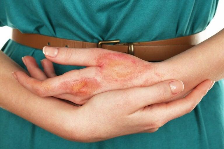 Forbrændt hånd