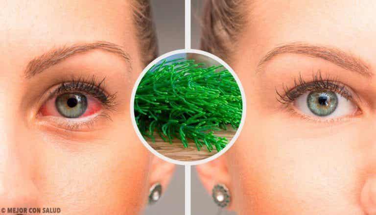 7 anbefalinger til naturligt at bekæmpe røde øjne