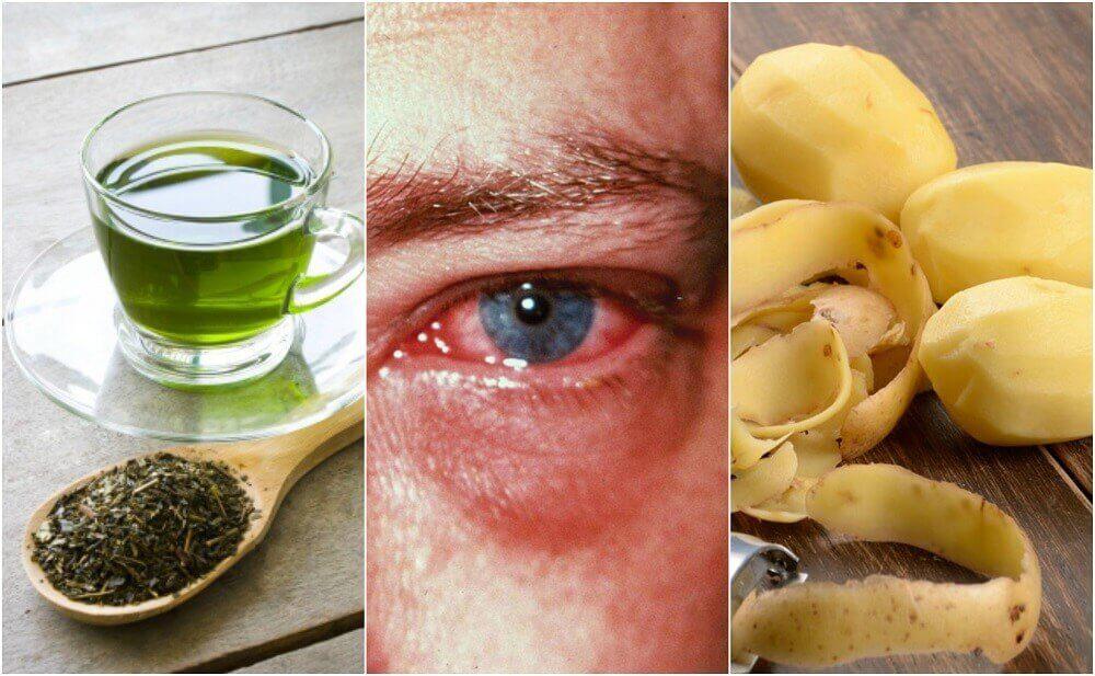 De 8 bedste midler mod øjenbetændelse