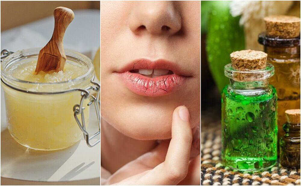 Sådan forebygges og behandles sprukne læber
