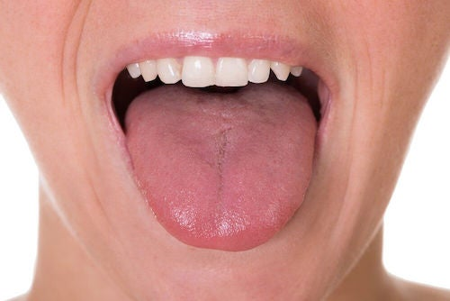 Person der raekker tunge - plak i halsen
