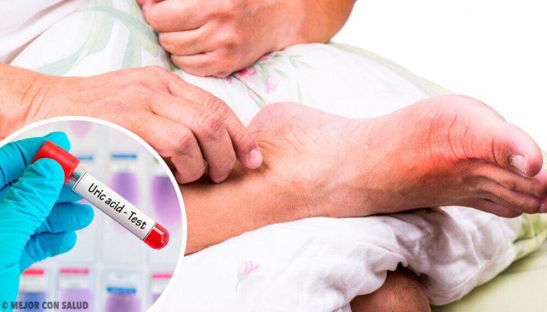 5 almindelige grunde til forhøjet urinsyreniveau