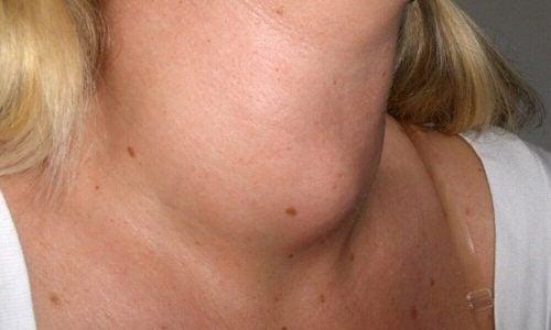 Kvinde medhaevet hals