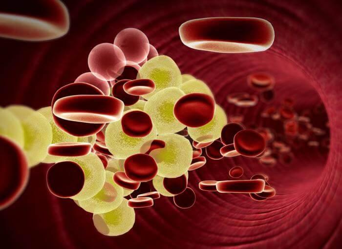 5 hjemmemidler til at sænke dit dårlige kolesterol