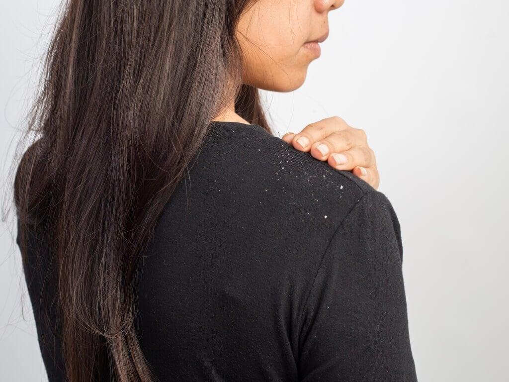 Kvinde med skael - hjemmelavet shampoo
