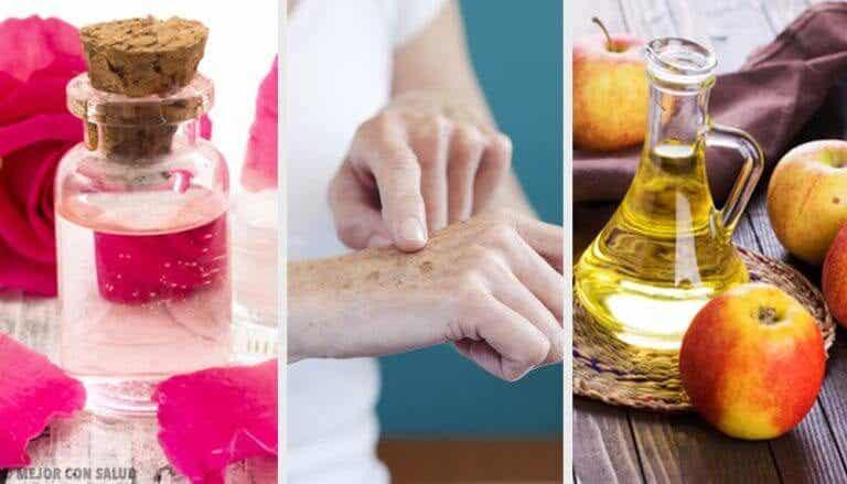 8 milde midler, der kan lysne leverpletter på hænderne