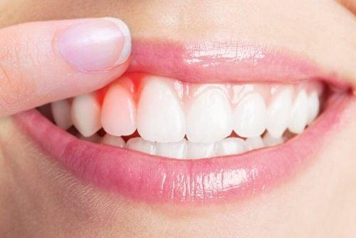 tandkødsbetændelse symptomer