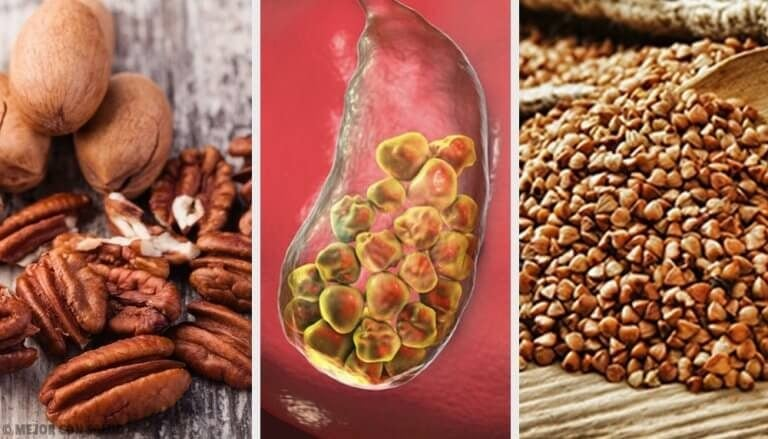 6 fødevarer der forebygger galdesten