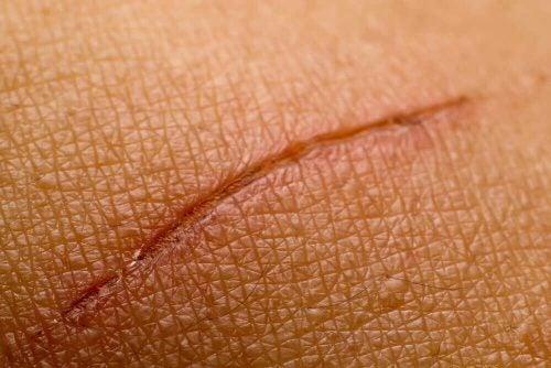 Et lille snitsaar - tidlige symptomer paa diabetes