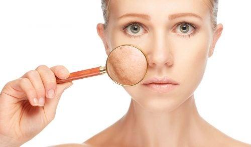 En kvinde har pletter paa huden - symptomer paa polycystisk ovarie syndrom