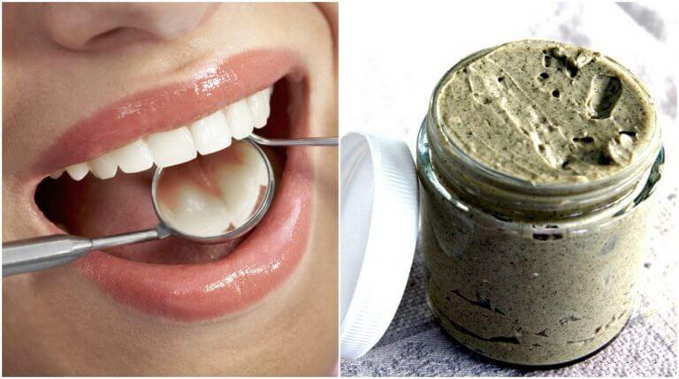 Sådan undgår du huller i tænderne