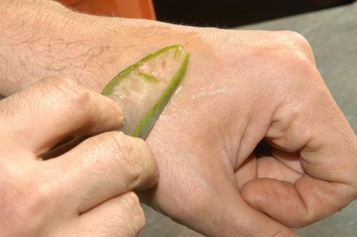 Aloe vera smørres på hånden