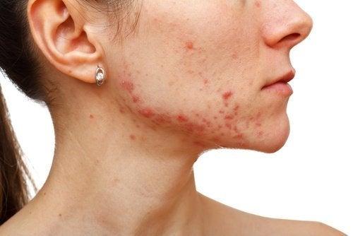 kamille mod acne