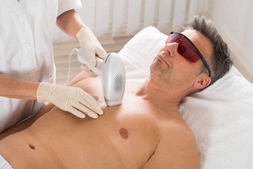Man faar laserbehandling