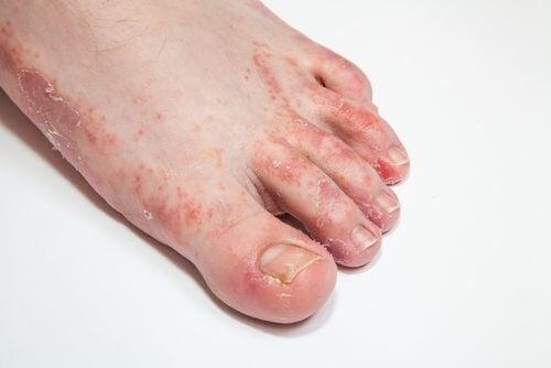 15 midler til at helbrede hudsvamp