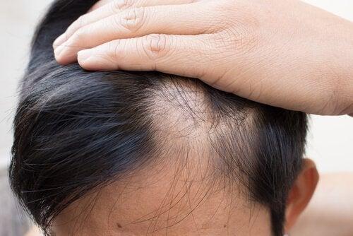 Person med hårtab