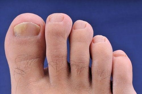 Behårede fødder.