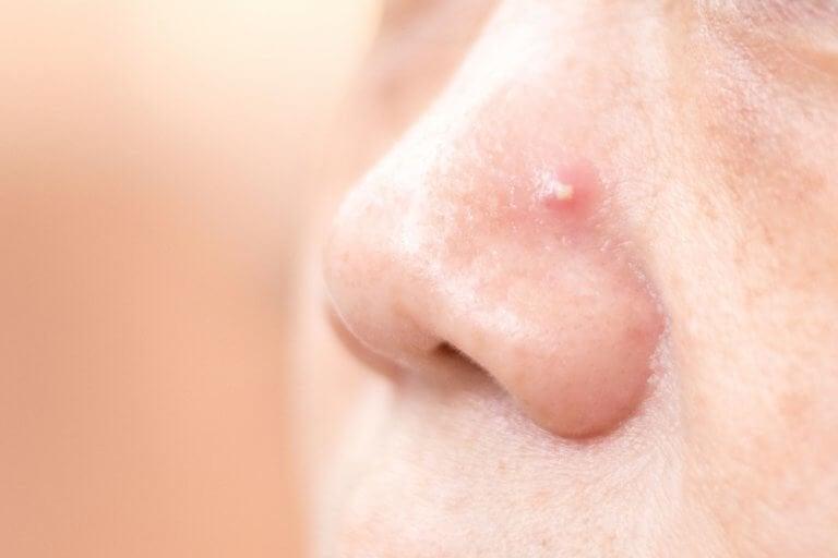 Slip af med bumser på din næse med fire hjemmemidler