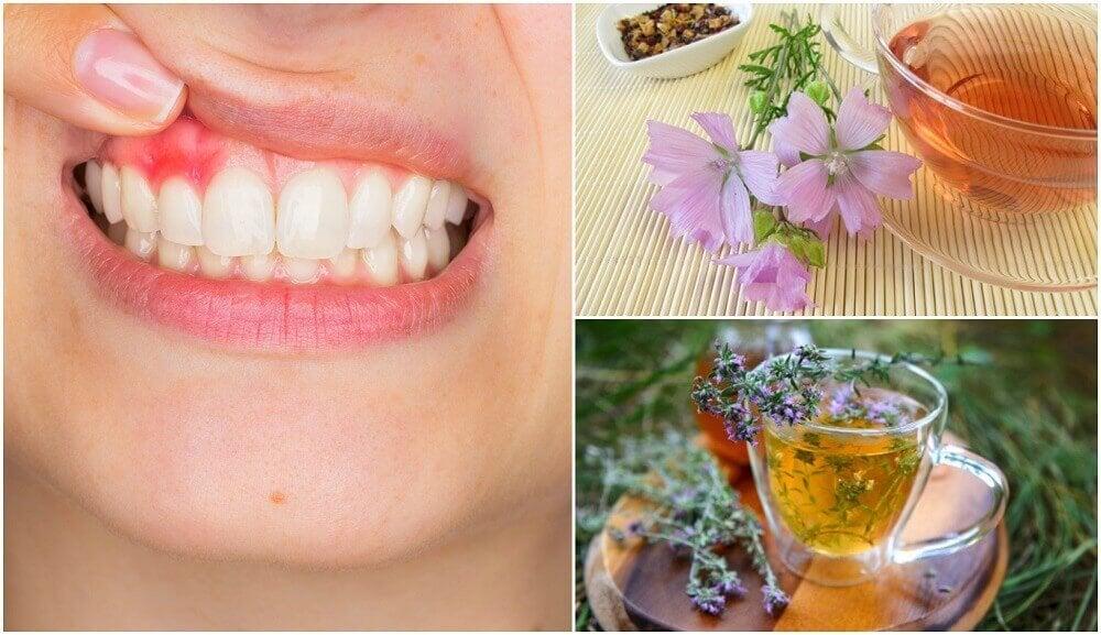 5 naturlige midler til at bekæmpe tandkødsbetændelse