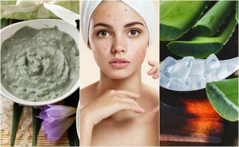 Smuk hud med naturlige midler.