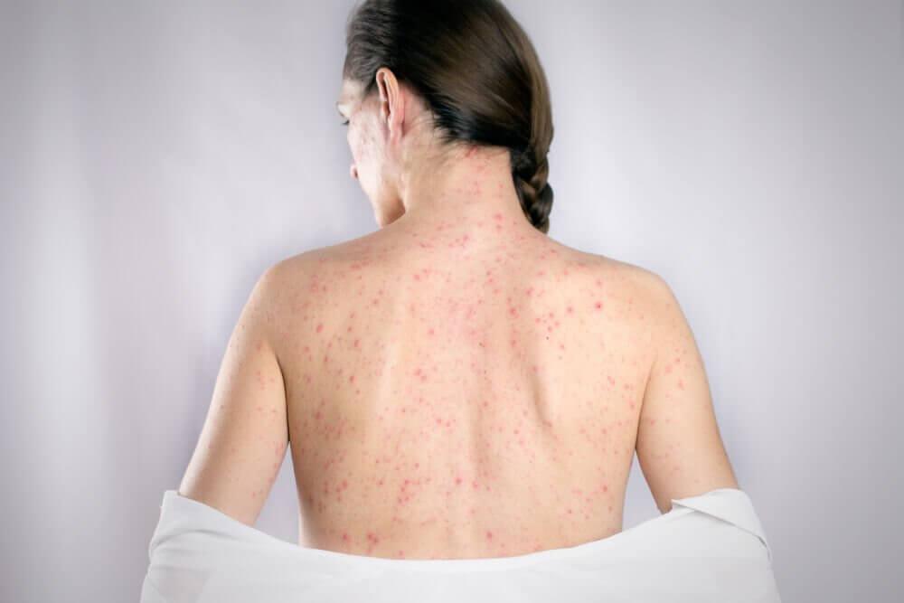De 5 bedste midler til at kurere herpes på ryggen
