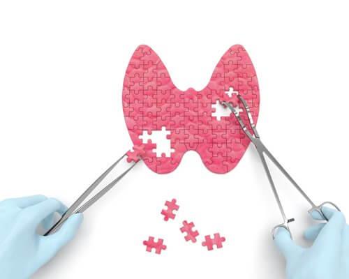 6 tegn på hypothyroidisme