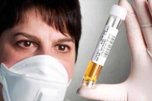 Hvad farven på din urin siger om din sundhed