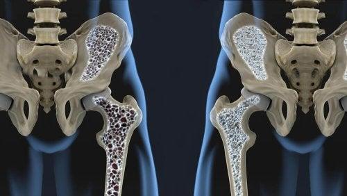 6 kosttips der kan hjælpe dig med at forebygge osteoporose