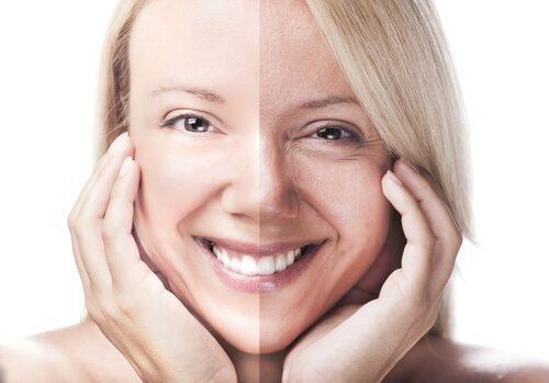 Kvinde med før og efter hud