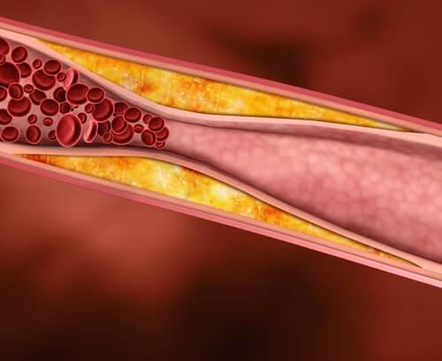illustration af dårlig kolesterol