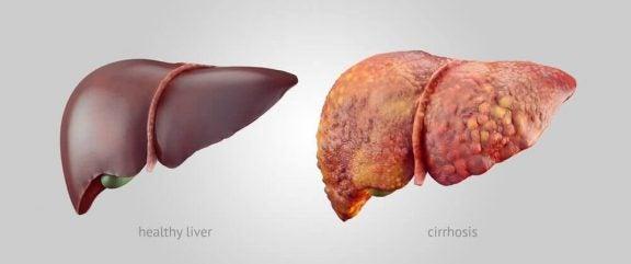 3 tips alle med levercirrose skal følge
