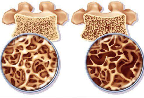 Kalciummiddel til at forhindre knogleskørhed